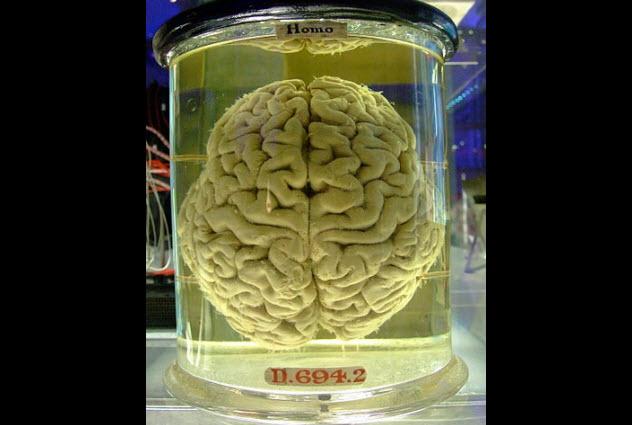 1-brain-in-jar