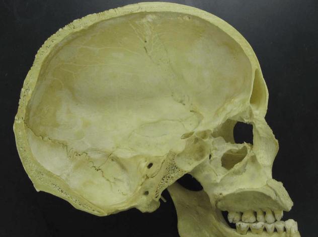 Human Skull Interior