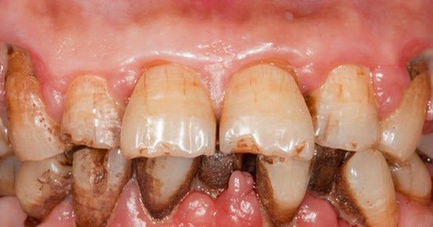 8-gum-disease-177106913