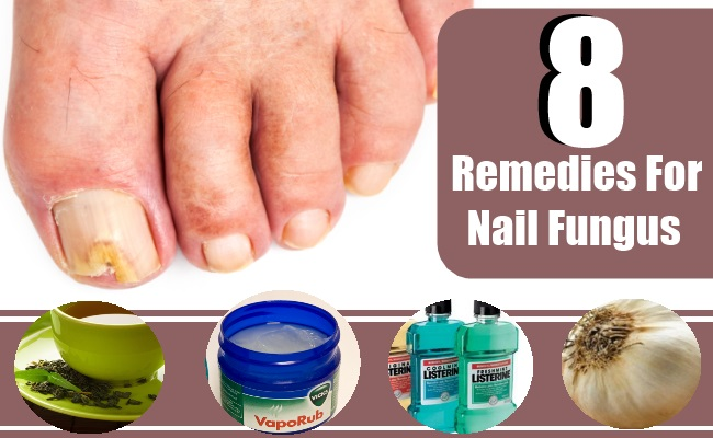 An Effective Home Remedy For Toenail Fungus Then You Will Be Glad To Know That Hydrogen Peroxide Can In A Number Of Ways Treat This Problem