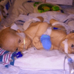 Conjoined twins, born after parents refused abortion, successfully separated