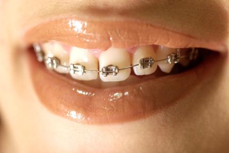 正直な意見を下さい。歯の矯正してる成人男性どう思う?