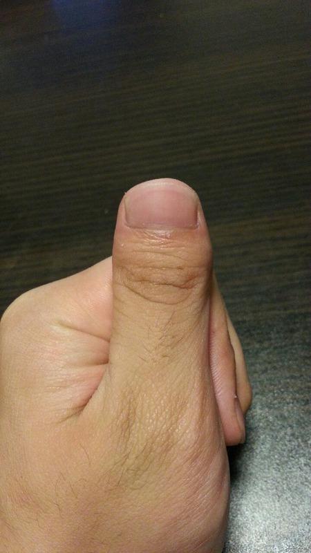 俺の親指奇形すぎワロタ・・・・