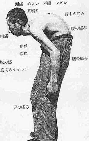 【中国発】 体が青黒く腫れる「トントン病」で20人近く死亡… ((((;゚Д゚))))ガクガクブルブル
