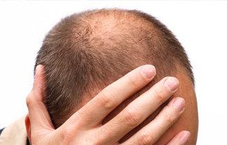 医師「ストレスと抜け毛は関係ない。細くて短い抜け毛はハゲの予兆」