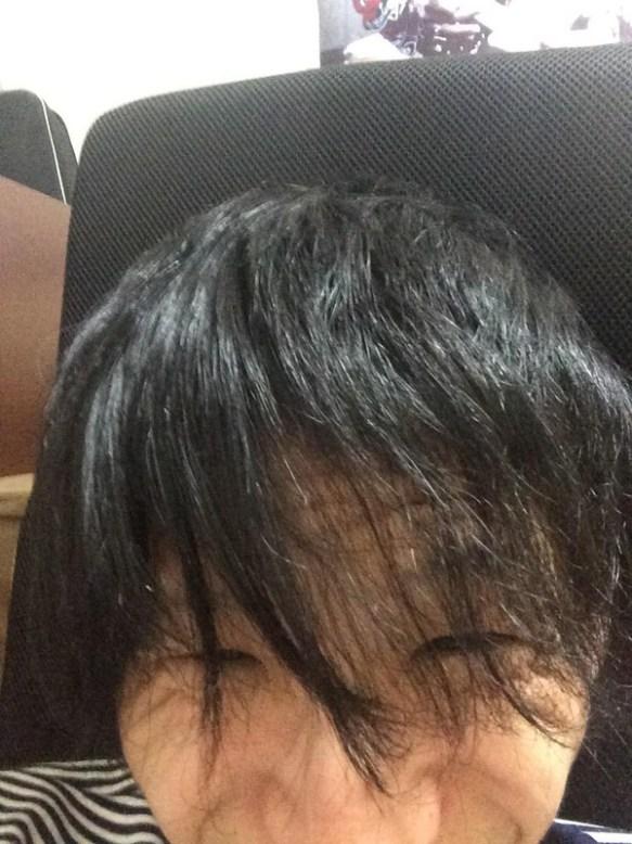 【悲報】前髪切ったらスッカスカに禿げててワロタwwwwwww