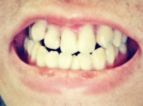 歯並びいいやつ、画像あげてくれ