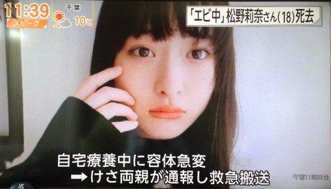 松野莉奈1
