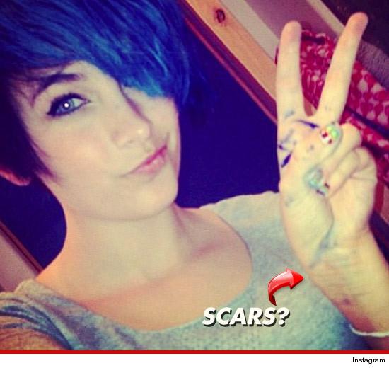 0605_paris_jackson_twitter_scars_2