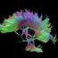 The Neuropsychological Implications of Interhemispheric Communication