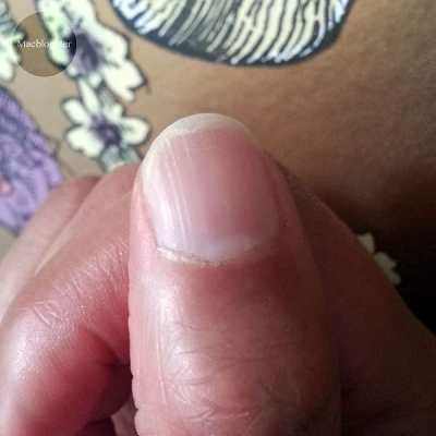 Gespleten nagels
