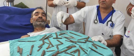 استخراج سكاكين من معدة هندي