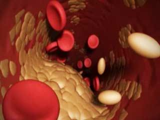 obat kolesterol jahat