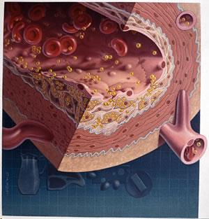 mengatasi kolesterol