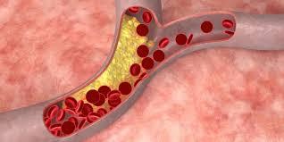 pembuluh darah kolesterol