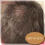 銀座総合美容クリニック治療経過