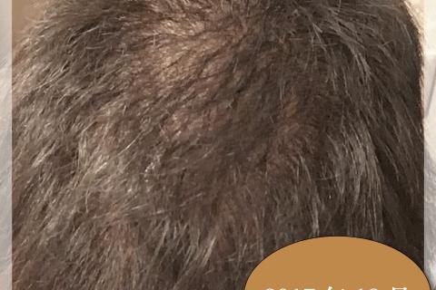 銀クリ治療(ミノキシジル・フィナステリド) ー22ヶ月