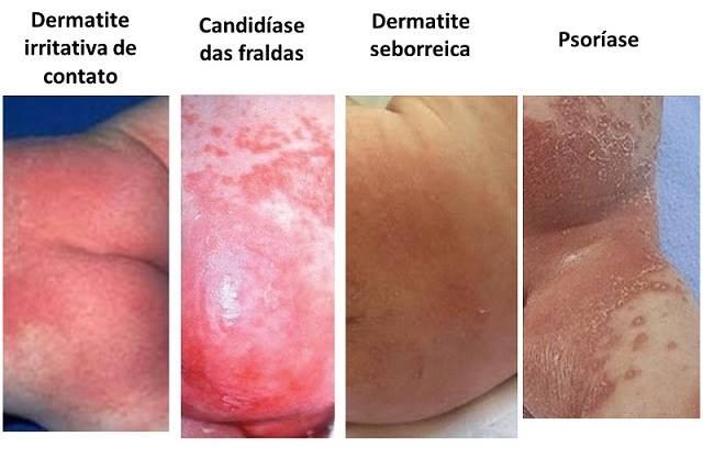 Resultado de imagem para dermatite de fralda