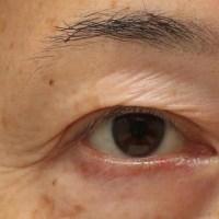 眼瞼下垂症手術後の目尻のふたまた
