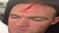 20130905Rooney_injury