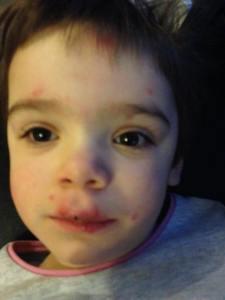 Elisa chicken pox