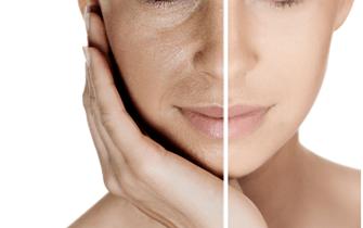 10 sèances lifting facial et crythérapie