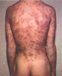 Syphilis lesions on back