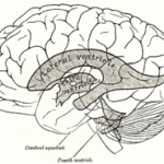 Ventricles in the brain