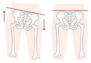 ホットヨガのメリット:骨盤矯正