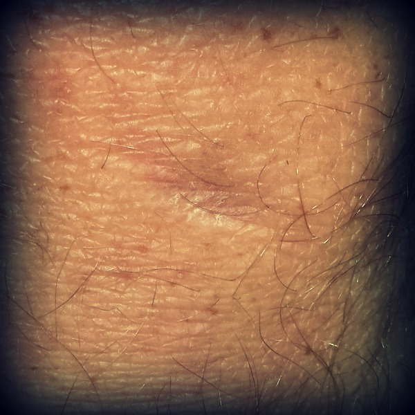 The scar from stitches in my knee