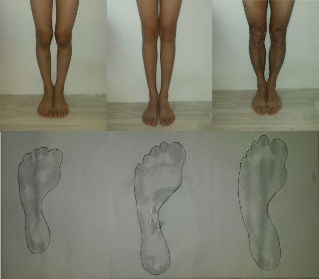 ноги и стопы_семья
