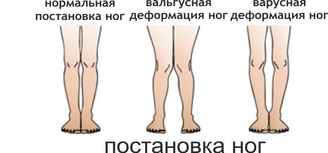 Виды деформации ног человека