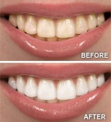 smiling before and after
