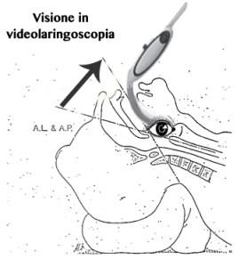 Visione in videolaringoscopia