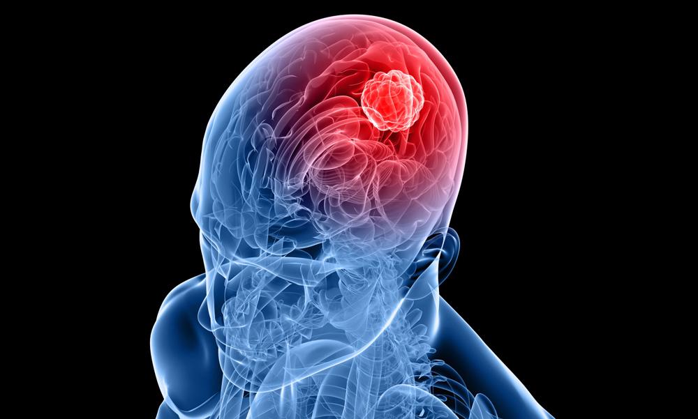 Läkemedel kan passera blod-hjärnbarriären med ultraljud