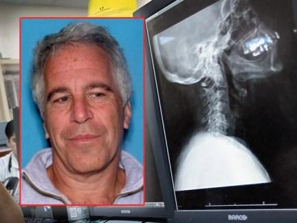 Image result for Report: Jeffrey Epstein Autopsy Reveals Broken Neck Bones