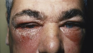 Despite An Allergic History The Patient Never Had Rash And Swelling This Severe