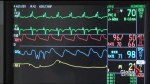 Heart attack recovery different for women: study