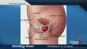 Latest information on prostate cancer
