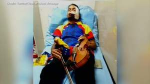 Venezuela's protesting violinist injured following violent clash in Caracas