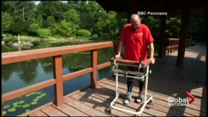 Surgical procedure allows paralyzed man to walk again