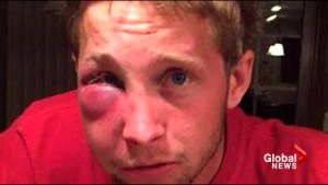 Mom's heartbreaking message goes viral after son with Asbergers assaulted