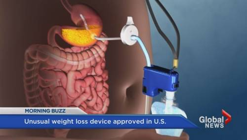 FDA approves unusual new weight loss device that pumps food out of ...