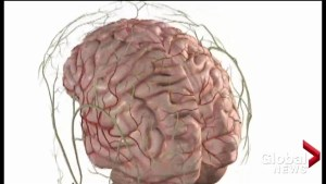 Stroke related disabilities expected to rise significantly