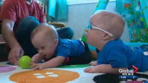 Alberta couple talks about raising twins with Down syndrome