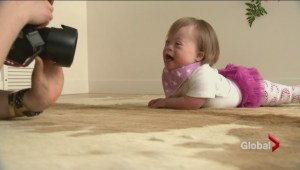 New advertising campaign in Alberta uses models with down syndrome