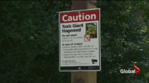 Severe Giant Hogweed burns have Ontario man issuing warning.