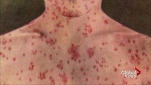 Hundreds of Oxford County students facing suspension for out-of-date vaccination records