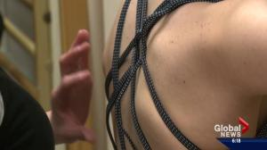 Research recommends special therapy for scoliosis