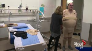 Alberta researcher tests 'Spanx for larger people' to help patients battling obesity